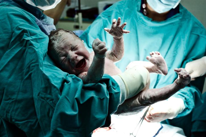 El relato de un parto con pródomos no identificados como tal, Kristeller y un bebé que aspiró meconio